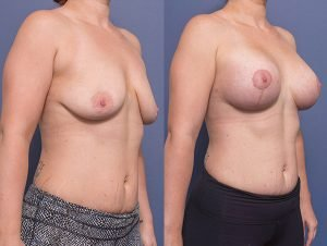breast lift before and after (with augmentation) - gallery image 012 - 45 degree view