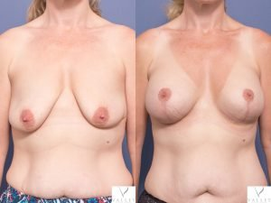 breast augmentation mastopexy - gallery image 010 - front view