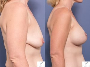 breast lift and breast implants - before & afters - image 007 - side view