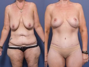 breast lift gallery - real patient 004A - before & afters - front view