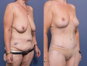 breast lift patient 004B - before and after image - 45 degree view