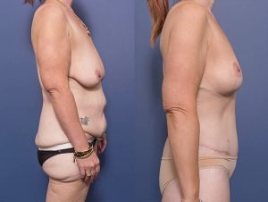 breast lift surgery - mastopexy gallery - patient 004C - side view