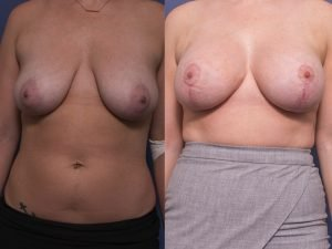 breast augmentation before and after (with breast lift) - image 007 - front view