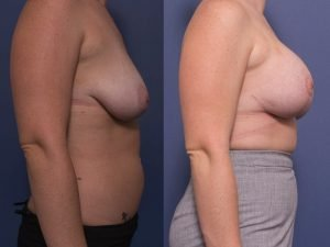 breast augmentation and breast lift - before and after - image 006 - side view