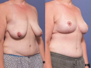 breast lift before and after gallery - patient 006B - 45 degree view