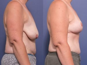 breast lift (mastopexy) gallery - before and after - patient 006C