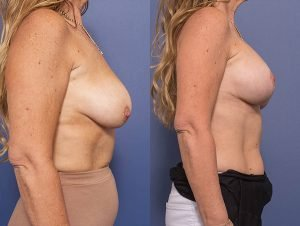 breast lift and augmentation - before and afters - image 005 - side view