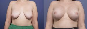 breast lift and augmentation before and after - image 003 - front view