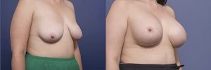 breast augmentation mastopexy before and after - image 002 - side view
