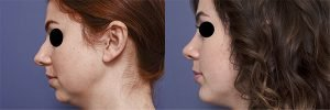 rhinoplasty before and after gallery - patient 1B - Rhinoplasty & Genioplasty - side view
