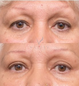 eyelid surgery at valley plastic surgery - patient 1A - before and after gallery - front view