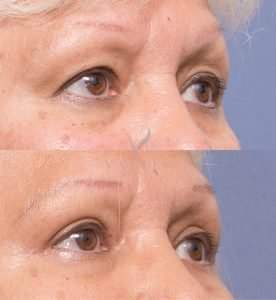 valley plastic surgery blepharoplasty patient 1B - before and after - 45 degree view