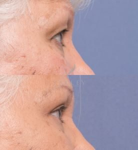 female upper blepharoplasty surgery 1C - before and after - side view