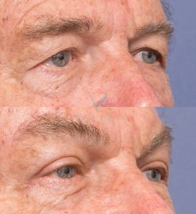 eyelid surgery gallery - patient 2B - upper eyelid blepharoplasty - 45 degree view