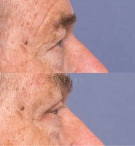 blepharoplasty before and after gallery - patient 2C - side view