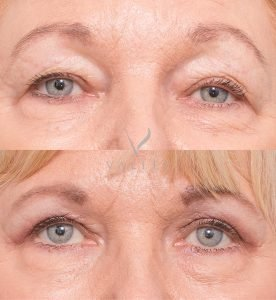 eyelid surgery before and after - patient 3A - front view
