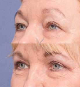 blepharoplasty gallery - patient 3B - upper eyelid blepharoplasty - 45 degree view