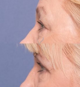 eyelid surgery before and after - patient 3C - upper eyelid blepharoplasty - side view