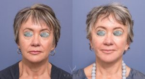 female facelift patient 001 - front view - image gallery