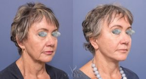face lift gallery - patient 001 - 45 degree view - before and after