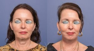 facelift and neck lift gallery - female patient 002 - before and after - front view