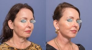 face lift & neck lift before and after - patient 002 - 45 degree view