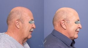 female patient 002 - facelift & neck lift and blilateral blepharoplasties - side view