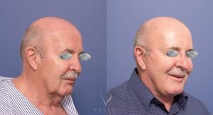 neck lift and facelift - patient 003 - 45 degree view