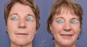 facelift and neck lift - patient 004 - front view - valley plastic surgery