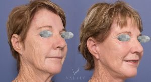 facelift & neck lift gallery - before and after - patient 004 - image 001