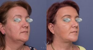 facelift and neck lift - before and after gallery - patient 005 - 45 degree view