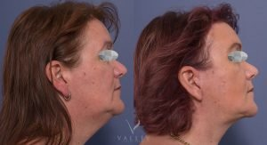 facelift and neck lift before and after - patient 005 - image 001 - side view