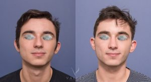 rhinoplasty at valley plastic surgery - patient 1A - before and after - front view