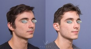 male patient before and after nose job 1B - 45 degree view