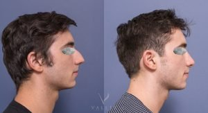 rhinoplasty before and after - patient 1C - image gallery - side view
