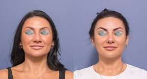 nose jobs gallery - patient 2A - before and after surgery - front view