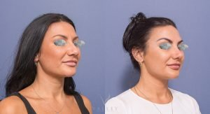 young female before and after rhinoplasty - patient 2B - 45 degree view