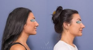 young female before and after nose job - image 2C - side view