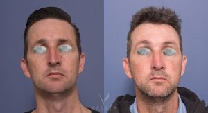 male nose job 3A - before & afters gallery - front view