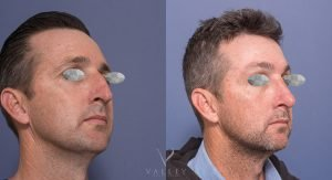 rhinoplasty surgery before and after gallery - patient 3B - 45 degree view