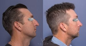 nose job - male patient 3C - before and after surgery - side view