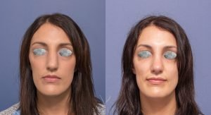 rhinoplasty patient 4A - front view - before and after image - front view