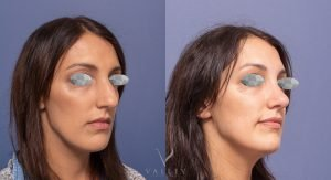nose job surgery image gallery - patient 4B - 45 degree view