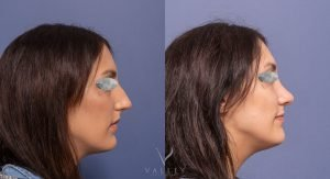 female patient 4C before and after rhinoplasty - side view