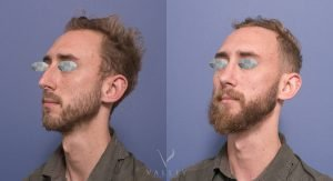 rhinoplasty surgery - patient 5B - image gallery - 45 degree view