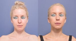 rhinoplasty patient 6A - before and after gallery - front view