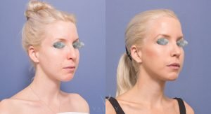 nose job patient 6B - before and after gallery - 45 degree view