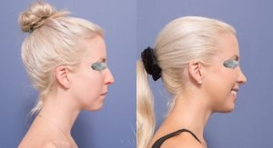 nose job before and after - patient 6C - side view