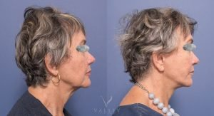facelift surgery before and after - female patient 001 - side view