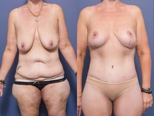 before and after body lift - female patient 001A - tummy tuck, breast lift & back lipectomy - front view